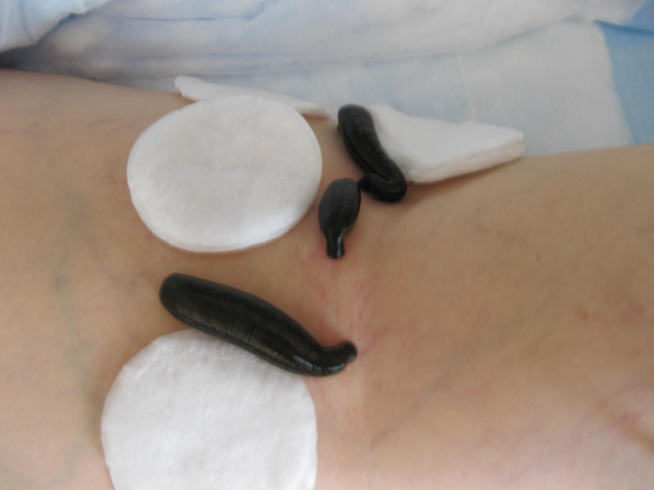 leeches in medicine Learn about the potential benefits of leeches including contraindications, adverse reactions, toxicology, pharmacology and historical usage.